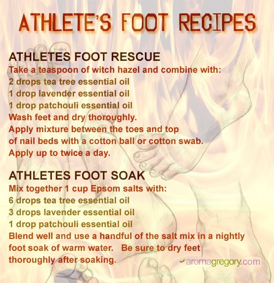 essential oil recipes for athlete's foot using natural ingredients and essential oils. http://www.aromagregory.com/essential-oils/essential-oils/