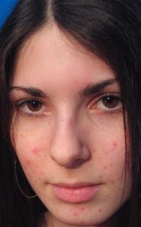 How To Get Rid Of Pimples Fast | Online bee