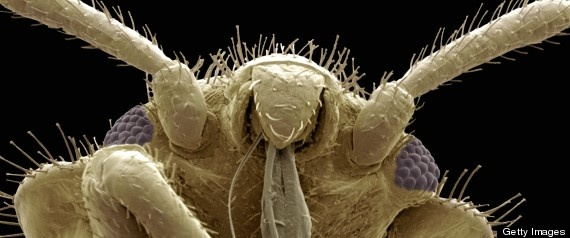 10 Best Bed Bug Traps Images On Pinterest Bed Bugs 3 4