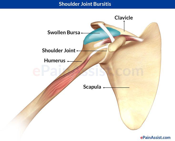 the 25+ best shoulder bursitis treatment ideas on pinterest, Human Body