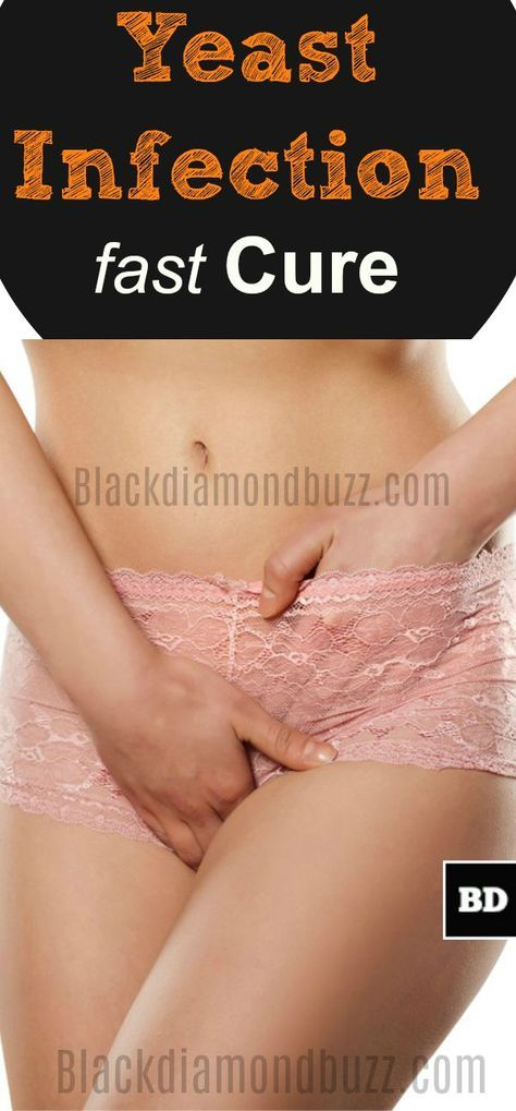 Yeast Infection Cure Fast at Home with Apple Cider Vinegar, Tea Tree and Baking Soda.