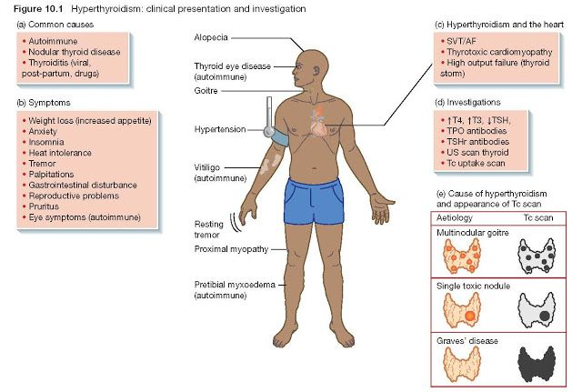 29++ Why does hyperthyroidism cause osteoporosis ideas in 2021