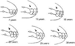 www.horse teeth age chart | ... Horses age, horse riding, used saddles for sale, draft horses