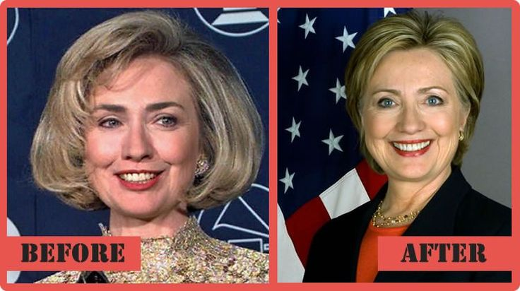 Hillary Clinton Plastic Surgery - The Story So Far #‎HillaryClintonPlasticSurgery‬ ‪#‎HillaryClinton‬ ‪#‎celebritypost‬