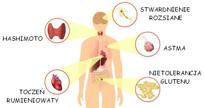 Choroby autoimmunologiczne (autoimmunizacyjne) stwardnienie rozsiane zapalenie tarczycy typu Hashimoto astma toczeń rumieniowaty celiakia reumatoidalne zapalenie stawów egzema i łuszczyca &…
