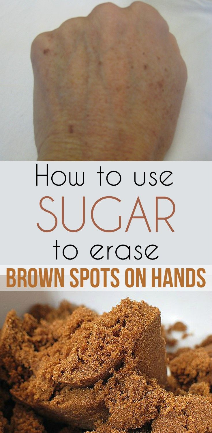How to use sugar to erase brown spots on hands - WeLoveBeauty.info