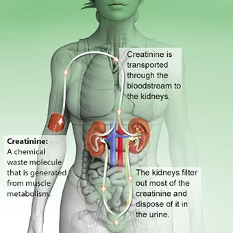 An illustration defining creatinine and shows how it is transported through the blood stream to the kidneys and disposed of it in the urine.