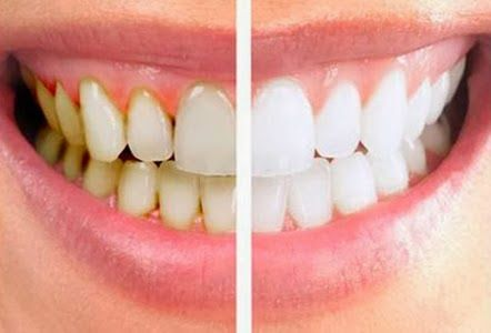 Remove Dental Plaque - Tips to Removing Plaque