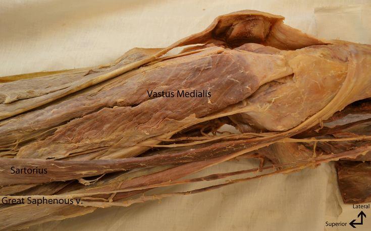 Adductor Longus Cadaver Adductor longu | Humano, Corpo |Adductor Brevis Cadaver