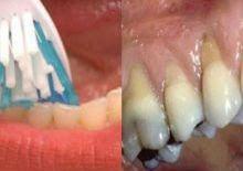 {BAYREES} Awas Jangan Menyikat Gigi Terlalu Keras Ini Akibatnya  Akibat menyikat gigi terlalu keras.  Dokter gigi merekomendasikan agar kita menyikat gigi setidaknya dua kali dalam sehari. Sehingga kita bisa mencegah kerusakan gigi dan menghindari gigi tanggal sejak dini.  Selain itu untuk menghilangkan sisa-sisa makanan yang terjebak di sela-sela gigi Anda disarankan untuk menggunakan benang gigi. Tapi jika Anda menyikat gigi dengan cara yang berbeda hal ini jelas akan menimbulkan efek yang…