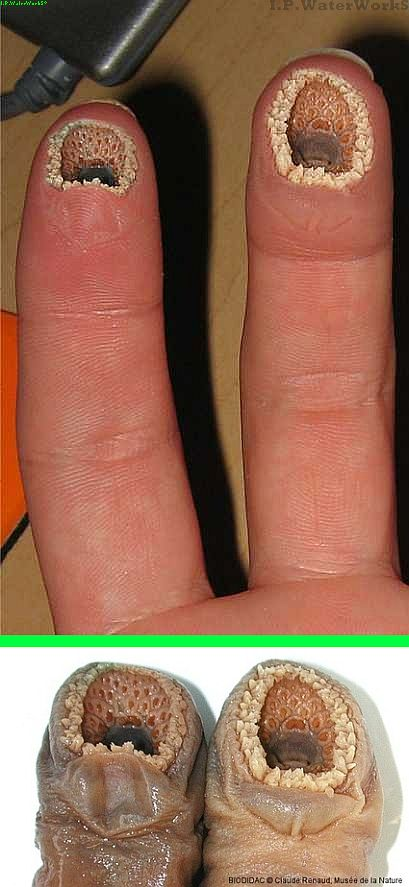 """Fake - Pinned as: """"Lamprey Disease. Watch out. Contagious."""" (also referred to as Trypophobia https://en.wikipedia.org/wiki/Trypophobia ) - This is a photoshop of two lampreys onto fingers, as shown on the bottom, and may have started on 4chan in 2006  http://www.snopes.com/photos/gruesome/fingers.asp . The reference to Trypophobia is a misuse from a site posting the picture as a trigger for someones phobia here: http://www.seymourduncan.com/forum/showthread.php?177963-Trypophobia"""