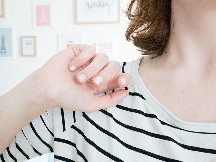 Pendant très longtemps, je me suis rongée les ongles. Comment arrêter de se ronger les ongles