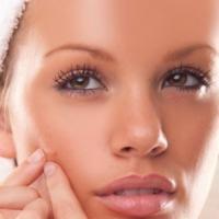 Cómo tratar el acné de la piel con remedios caseros