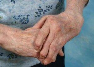 Como curar la artritis naturalmente