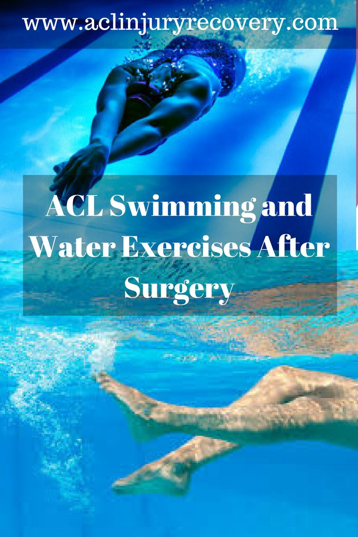 Swimming after ACL surgery is one activity that is highly effective and should be built into the ACL tear recovery of every program.  Getting wet and in the pool is an easy way to get back into exercise post-surgery.