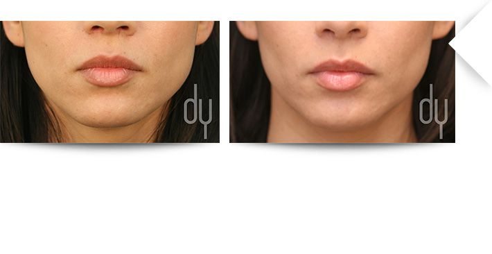 Before and After Botox for masseter reduction (V-line) to create tapering and slimming of the jawline.