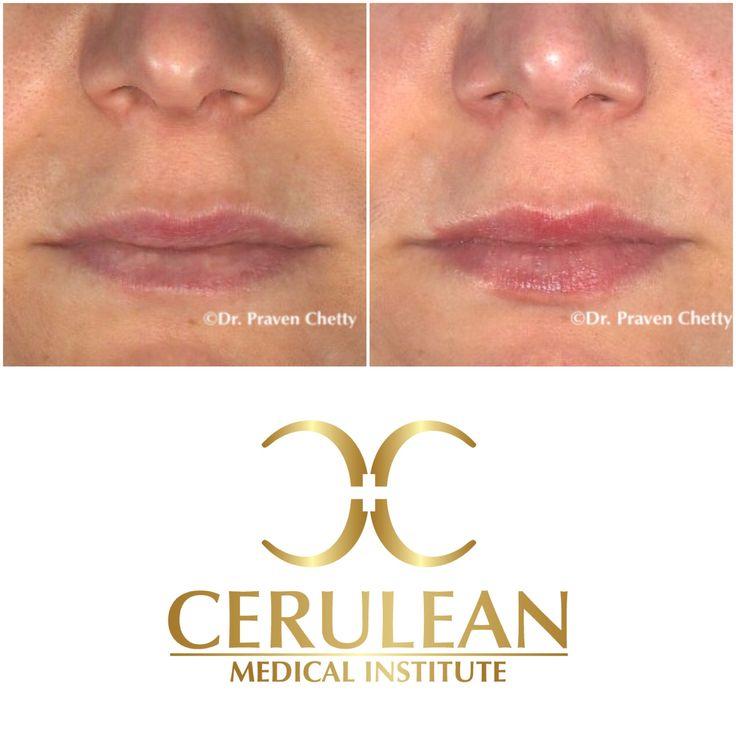 Lip enhancement for natural looking fuller lips at Cerulean Medical Institute✨💋✨ #LipEnhancement #LipAugmentation #LipInjections #Lips #BeforeAndAfter #Fillers #DermaFillers #Juvederm #Volbella #Cosmetic #Dermatology #CeruleanMedicalInstitute #RealSelf #TopDoctor #DrPravenChetty #Kelowna #Okanagan