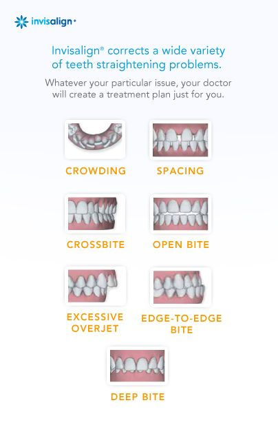 Invisalign corrects a wide variety of teeth straightening problems, including: gapped teeth, overbite, underbite, open bite, overly crowded, or crossbite?