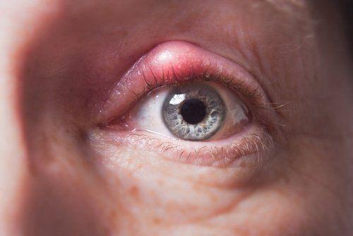 Mit dem Begriff Gerstenkorn wird eine Umfangsvermehrung am Augenlid bezeichnet, die häufig aus einer entzündeten Talgdrüse resultiert.