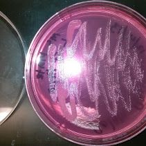 staphylococcus auras. growing bacteria. Identifying it. curing people.