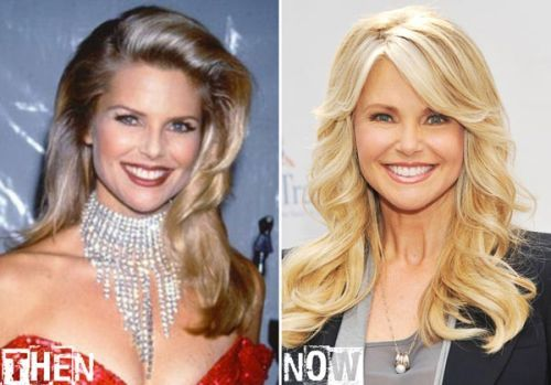 Christie Brinkley Daughter Plastic Surgery | Christie Brinkley before and after plastic surgery
