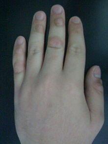 Dermatillomania  skin picking disorder - Wikipedia, the free encyclopedia