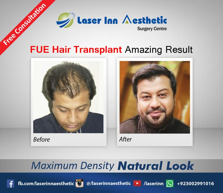 FUE Hair Transplant Amazing Result.  #LIASC #HairTransplantinPakistan #HairTransplantinKarachi