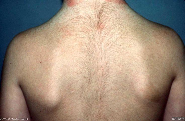 hypertrichosis.JPG (1640×1078)