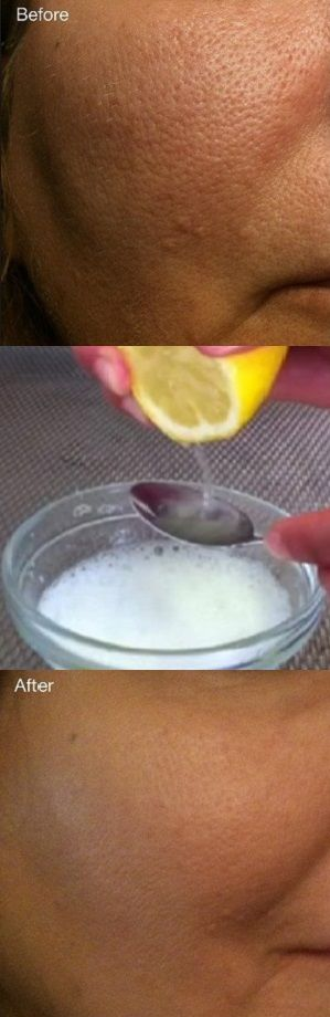 Get Rid Of Pores With These Simple Homemade Remedies