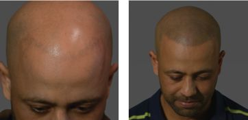 Could Tattoos Be The Answer For Male Baldness? Introducing HIS Hair Clinic's Scalp Micro-Pigmentation in the U.S.