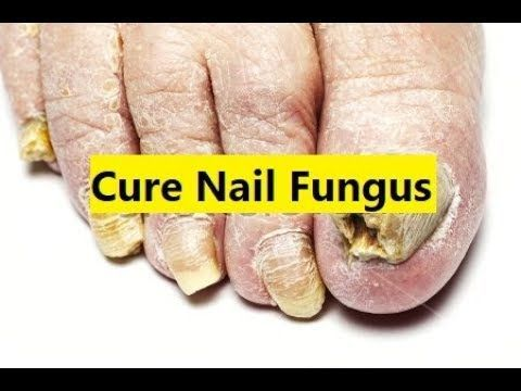 Cure Nail Fungus Best Nail Fungus Treatment Youtube