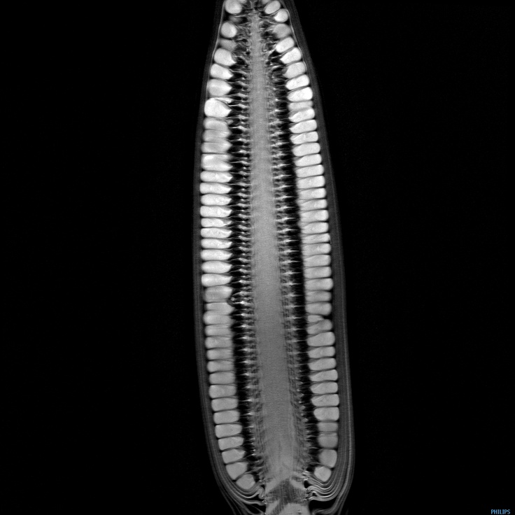 """Corn"" in series of animated MRIs of fruit and vegetables by Andy Ellison called ""Inside Insides"".  http://io9.com/5949058/what-do-fruits-and-vegetables-look-like-inside-an-mri-short-answer-whoa    http://insideinsides.blogspot.com/"