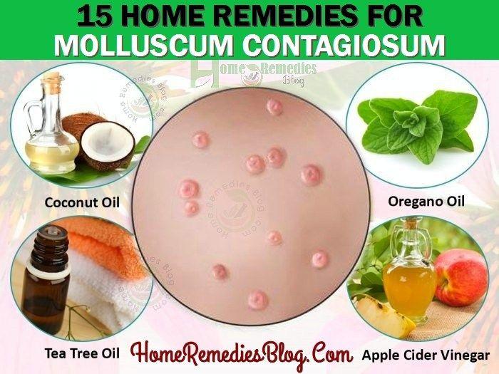 Molluscum Contagiosum Is Contagious Common Skin Diseases Which Spreads Easily Mostly Kids And Childre Skin Problems Remedies Home Remedies Natural Treatments