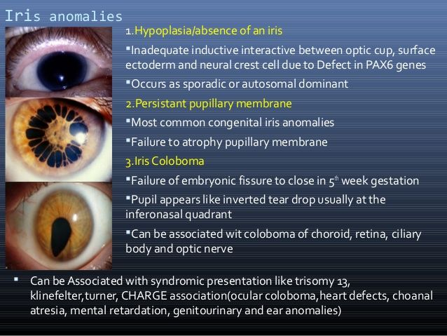 Image result for iris coloboma
