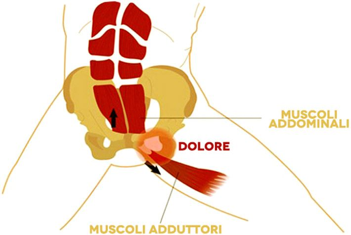 Pubalgia: sintomi, cause, rimedi naturali >>> http://www.piuvivi.com/salute/pubalgia-sintomi-cause-rimedi-trattamenti-naturali.html <<<
