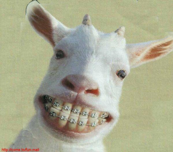 Des broches! Ça l'aurait certainement améliorer mon sourire!