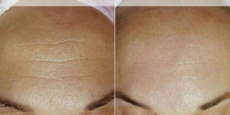 Choć wiele zabiegów kosmetycznych przynosi obiecujące rezultaty, nigdy nie zobaczycie niczego podobnego do tej maski, która eliminuje zmarszczki w ciągu tygodnia. Zmarszczki są problemem estetycznym, który dotyka wiele osób.