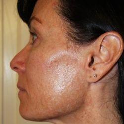how heal face facial skin damage