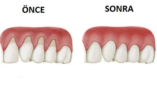 Diş eti çekilmesi dişlerinizin etrafındaki etlerin geriye doğru çekilerek diş yüzeyinizin büyük bir kısmını dışarıda bırakması demektir. Mikroorganizmalar bu bölgede çok kolay bir şekilde yaşar ve gelişirler. Hatta dişin kökü bile meydana çıkabilir, ve bundan sonra size işkence yaşatmaya başlar. Bu noktadan sonraki aşama hatta size dişinizi kaybettirebilir. Diş Eti Çekilmesinin Belirtileri Bu olay çok yavaş olduğu için çoğu insan diş etlerinin çekildğini farketmezler. Eğer dişleriniz…