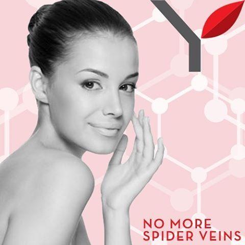 Χαρίστε στην επιδερμίδα σας λάμψη κι ακτινοβολία! Η θεραπεία Spider Llines είναι ιδανική για την εξάλειψη αραχνοειδών αγγείων του προσώπου αλλά και του σώματος. Απαλλαγείτε από τα αραxνοειδή αγγεία και αποκτήστε επιδερμίδα λεία, χωρίς σημάδια!  #vivify #thebeautylab #vivifyyourself #spiderlines #spiderveins
