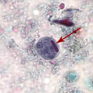 Cyst of E. histolytica/E. dispar stained with trichrome. Note the chromatoid body with blunt ends (red arrow).