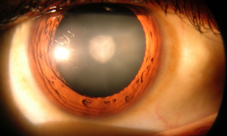 Cataract Eye drops could clear up cataracts using newly identified chemical 11/5/15.