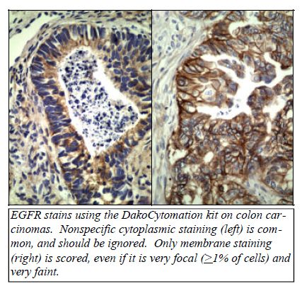 EGFR stains using the DakoCtomation kit on colon carcinomas. Nonspecific cytoplasmic staining (left) is common, and should be ignored. - http://www.propath.com/companies/press-clippings/26-newsletters/267-epidermal-growth-factor-receptor-and-erbitux-march-2004