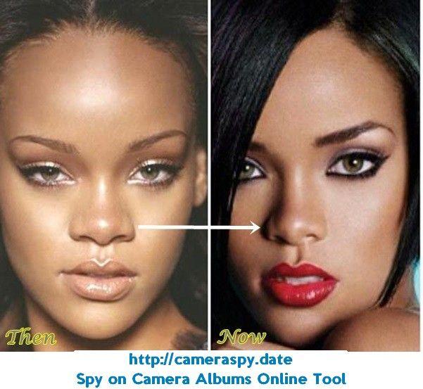 Die Besten 25 Rihanna Plastische Chirurgie Ideen Auf