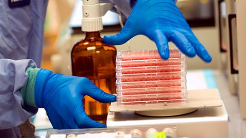 Seven Esential Blood Tests You Must Have