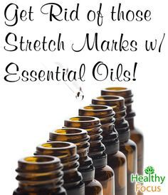 Essential Oils for Stretch Marks include Helichrysum, Frankincense, Geranium, Myrrh, and Jasmine. Jojoba, Grapeseed, and Rosehip Oil are other remedies.