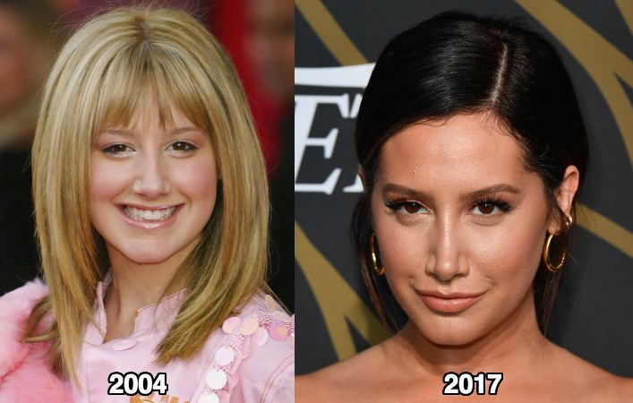Ashley Tisdale Nose Job Before and After Photos - Latest Plastic Surgery Gossip And News. Plastic Surgery Tips and Advice