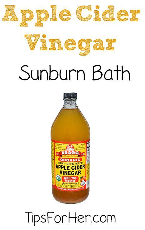 Apple Cider Vinegar Sunburn Bath - A simple and effective way to help relieve mild sunburn pain.