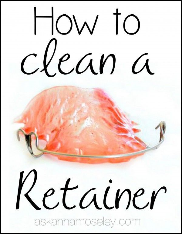 How to clean a retainer - Ask Anna