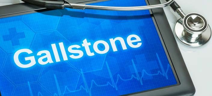 Gallstones: Causes, Treatment and Prevention